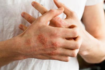 dermatitis en las manos